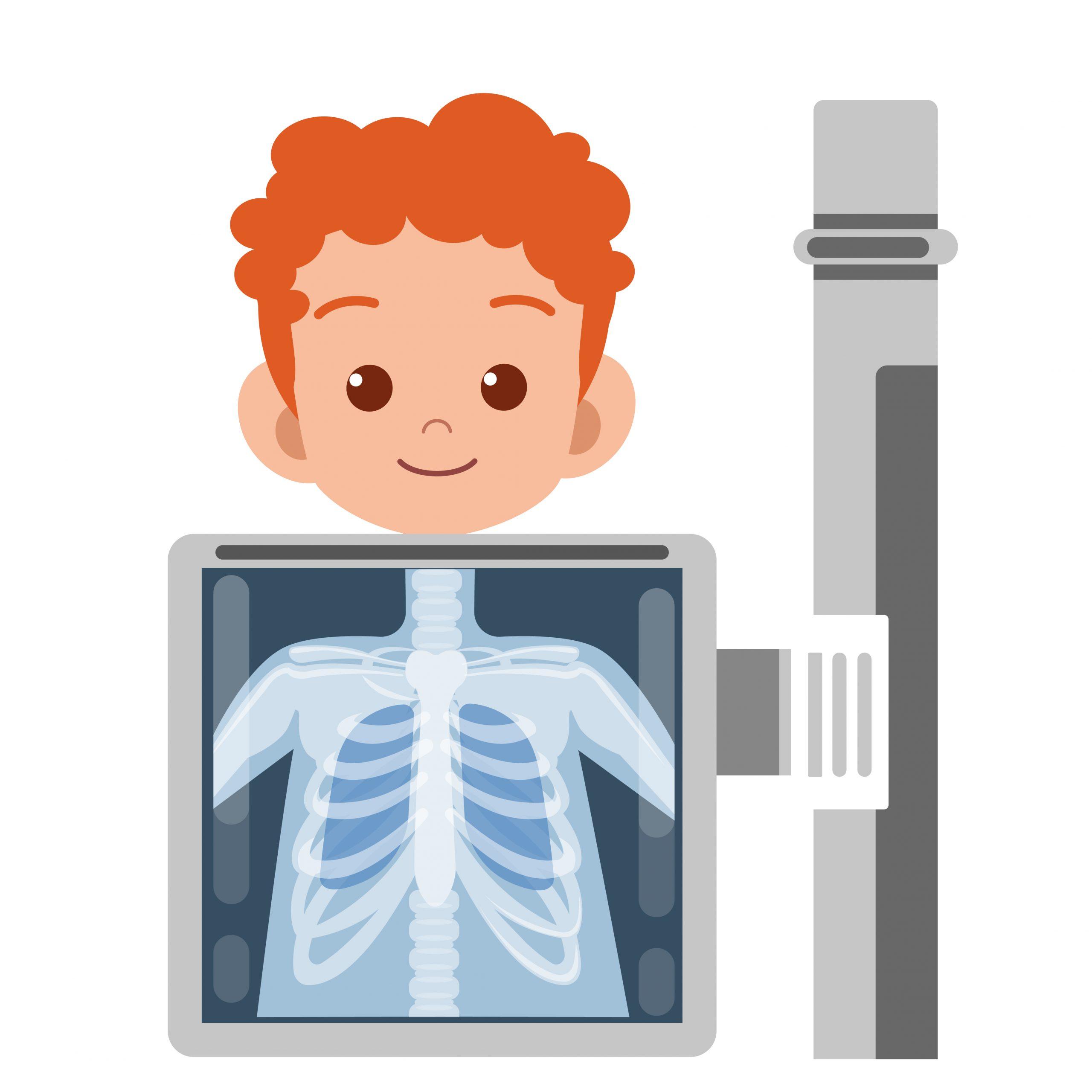 bronchite protratta accertamenti